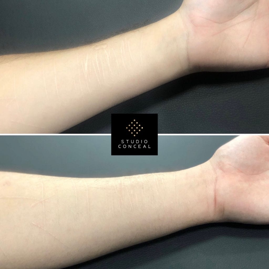 self harm scar removal before and after