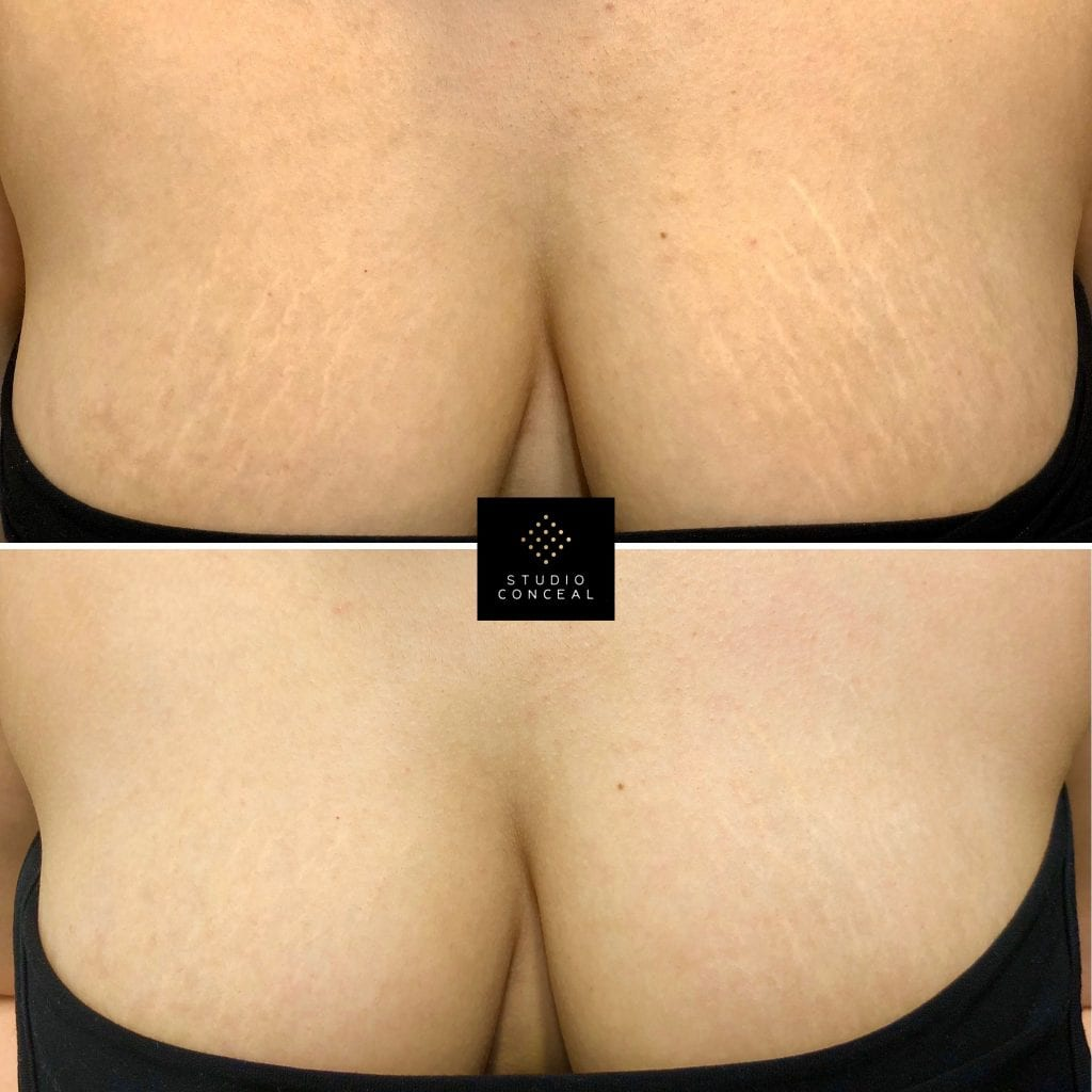 brazilian stretch mark camouflage on breasts
