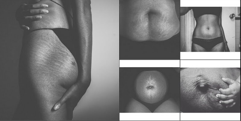 spiritual meaning behind stretch marks