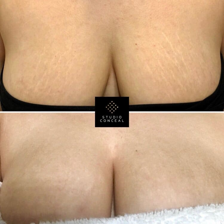 studio conceal stretch mark camouflage