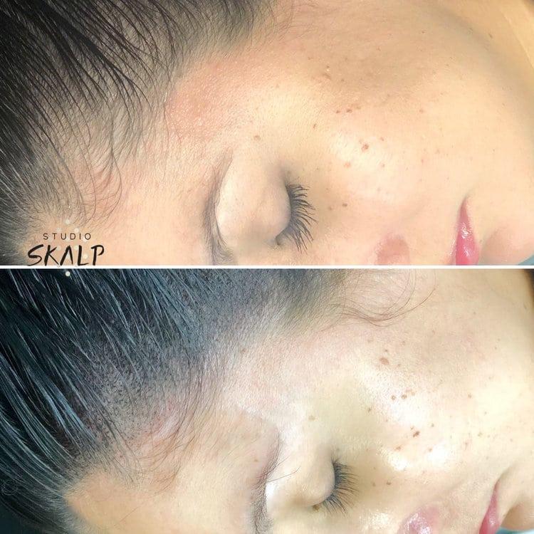 az scalp micropigmentation with hair smp