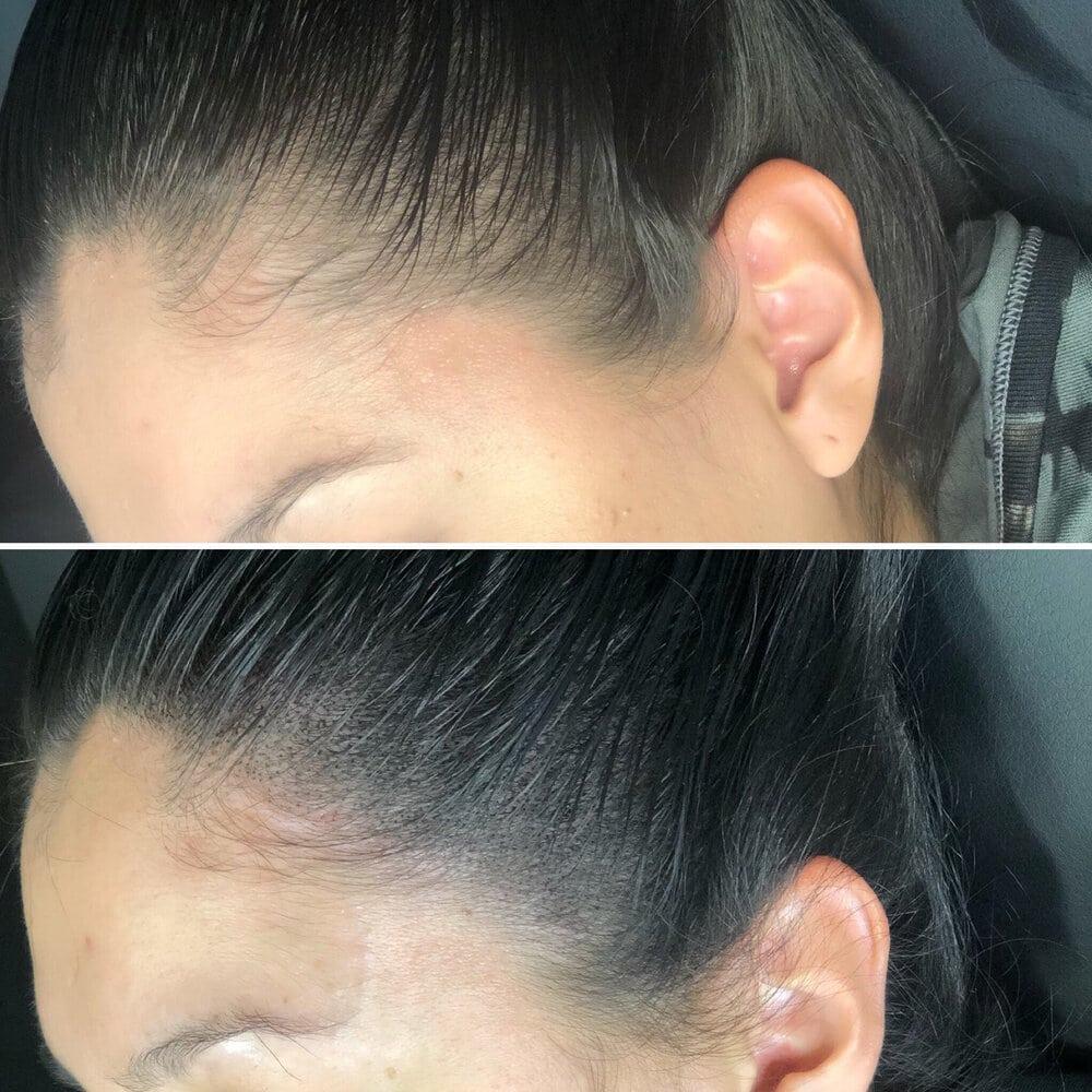 az scalp micropigmentation with hair
