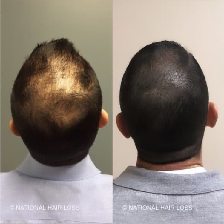 scalp micropigmentation in arizona before after