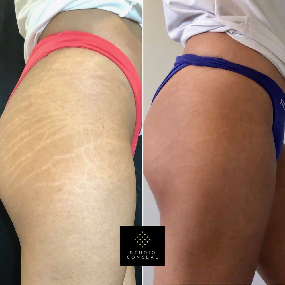 Stretch mark cover ups Left: Taken before I ever touched her Right: Final result after her touch up (second session)