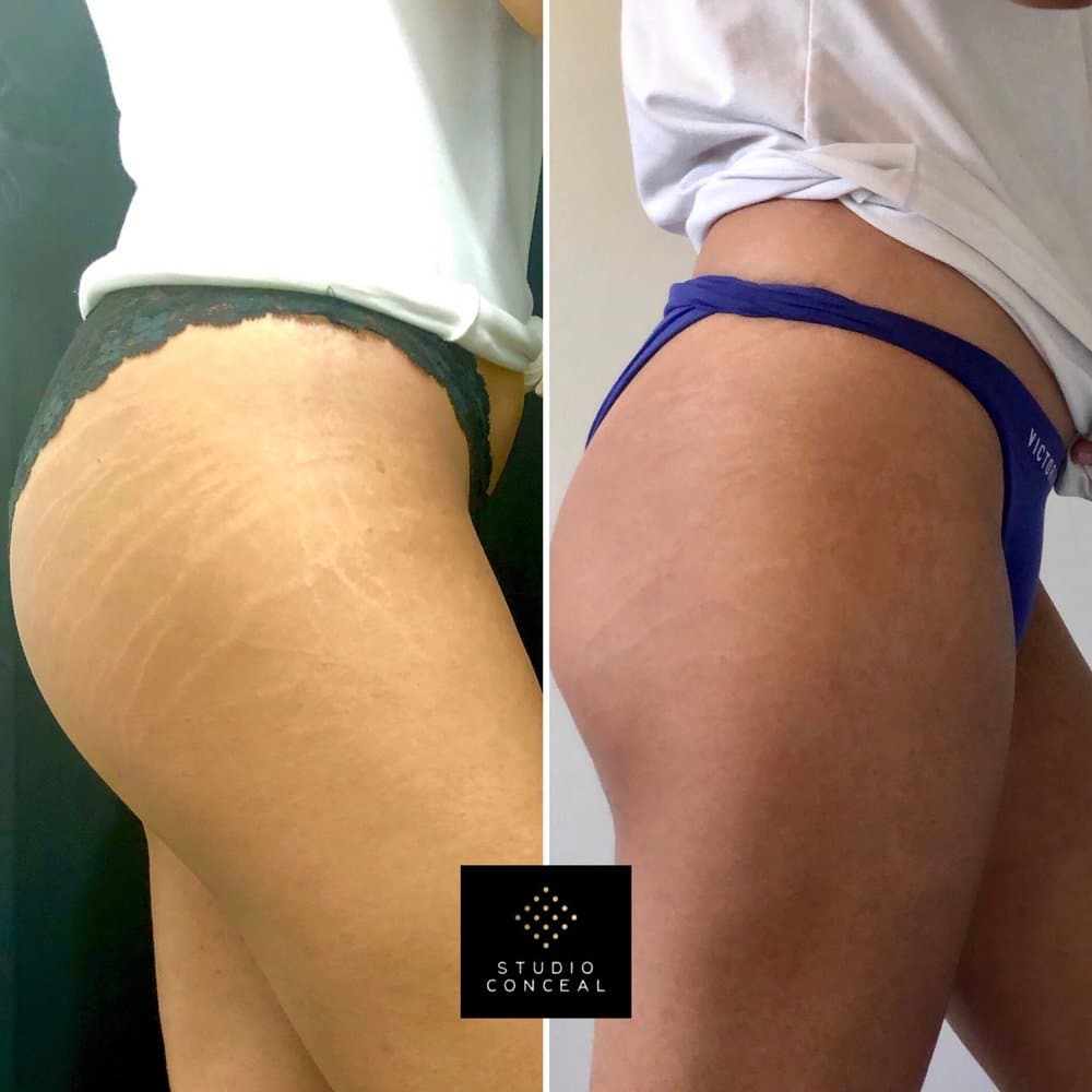 Left: After her first initial camouflage tattoo session Right: After her touch up session (healed results) (stretch mark cover ups)
