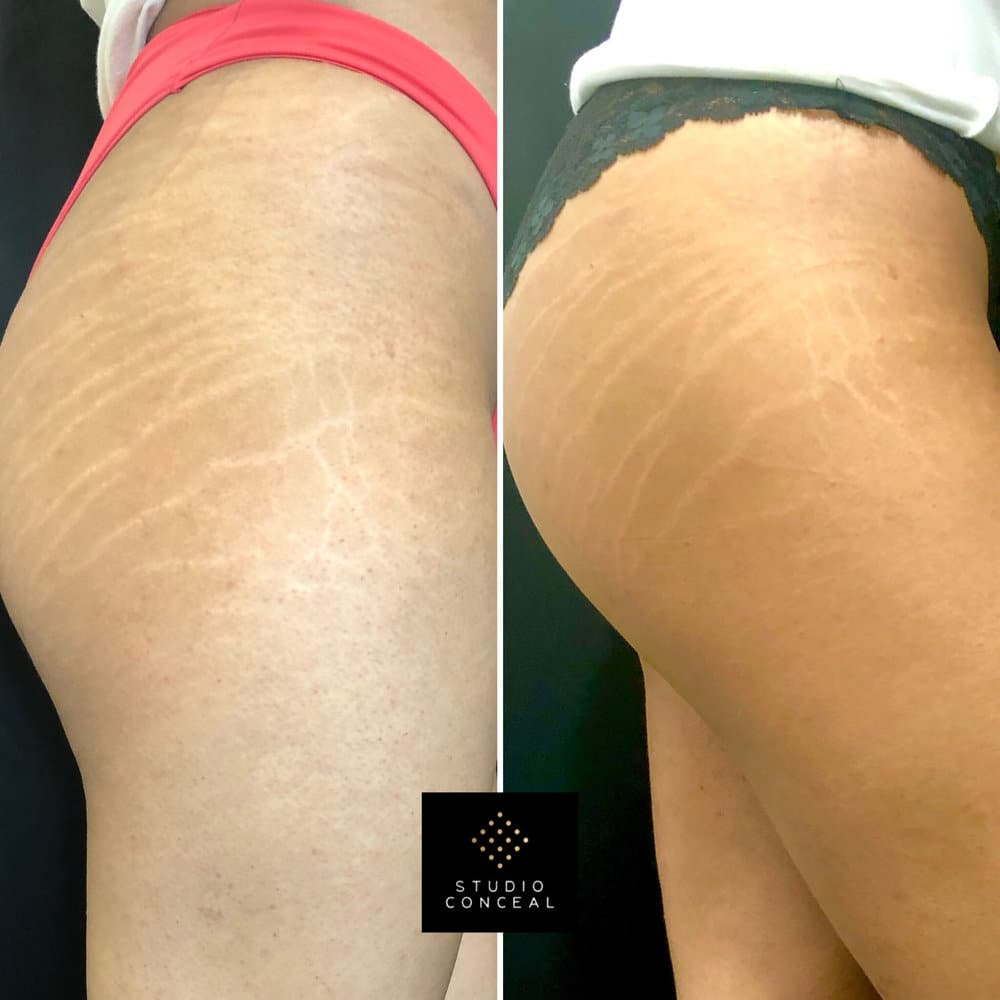 stretch mark cover ups Left: Before photo Right: After 1st initial session (healed results)