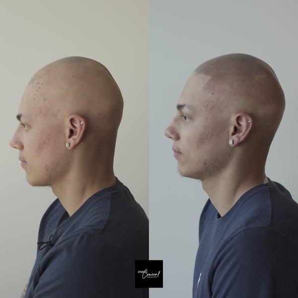 hair tattoo for alopecia areata
