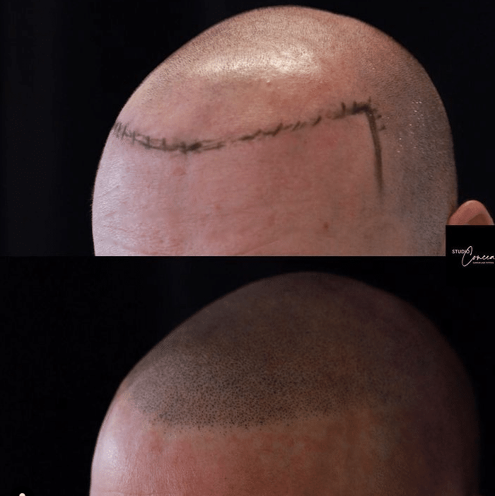 Hair tattoo or scalp micropigmentation before and after